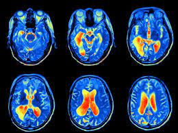 Functional Magnetic Resonance Imaging (fMRI) And How It Works